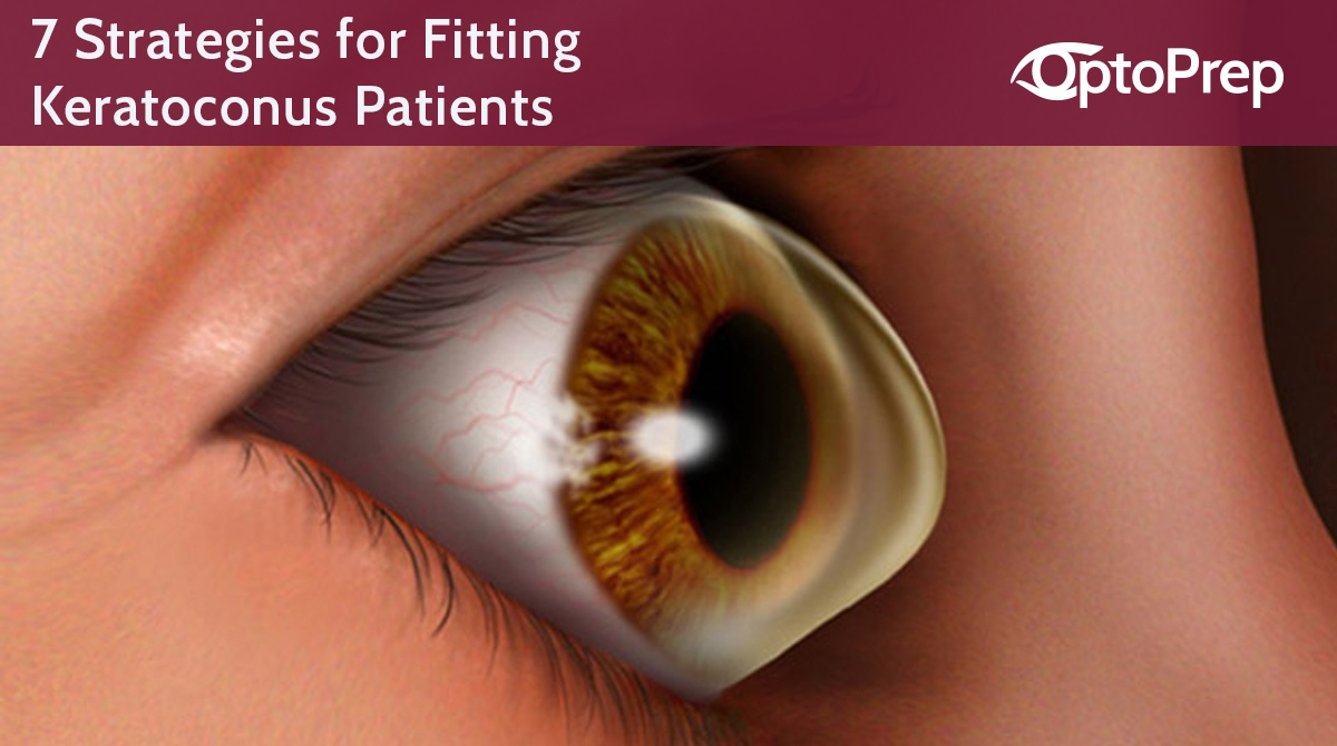LINK-7-strategies-for-fitting-keratoconus-patients.jpg